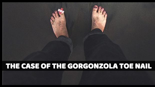 The Case of the Gorgonzola Toe Nail